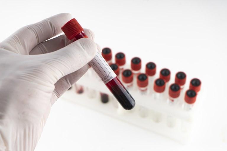 Teste para Covid-19 integra quadro de cobertura obrigatória de planos de saúde